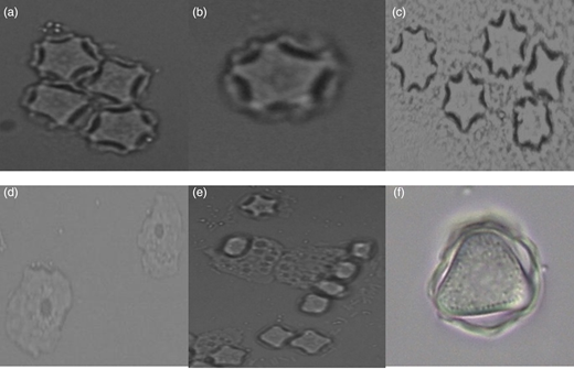 Acanthamoeba trophozoites (d) and (e) and cysts (a)–(f) found in recreational and domestic water collected from Jamaica. Magnification of 40× (a), (c), (d) and (e) and 100× (b) and (f).