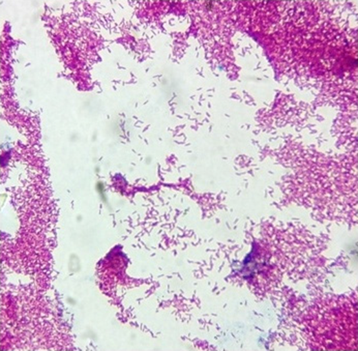 Microscopic observation of positive Ziehl–Neelsen staining of strain SA11 (Photonic microscope, ×100).