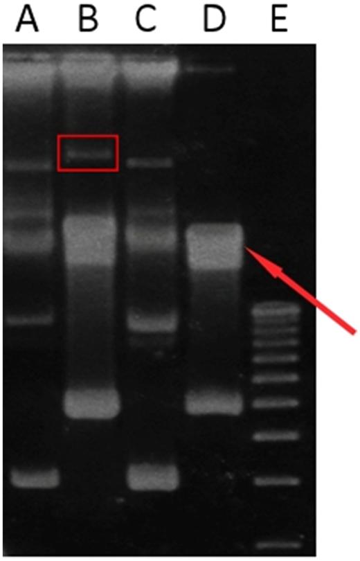 Agarose gel profiles of plasmid DNA isolated from strains L4 and P18. Lane A: Acinetobacter sp. (L4) parental strain; lane B: Citrobacter freundii P18 parental strain; lane C: L4 cured derivative; lane D: P18 cured derivative; lane E: 1 kb plus DNA ladder. The rectangle indicates the plasmid in P18 parental strain and the arrow indicates the chromosome residues.