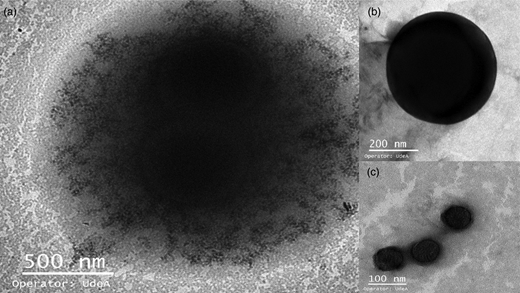 Negative staining TEM images of: (a) magnetic microparticles after being exposed to a 106 VP/L rotavirus solution; (b) pristine magnetic microparticles; (c) rotavirus particles attached to the surface of magnetic microparticles.