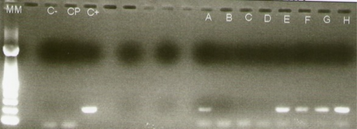 Agarose gel electrophoresis showing the amplification of a region of the VP6 gene. Lanes A–D correspond to samples from water treatment plants (PA, PB, PC, PD). Lanes E and F correspond to Rotateq stock concentrations of 10 VP and 106 VP diluted in 1 L of distilled water. Lanes G and H correspond to the same viral concentrations but diluted in 1 L sterilized drinking water, separated and concentrated by fluoromagnetic functionalized microparticles.