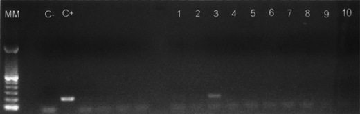 RNA amplification in 1.8% agarose gel electrophoresis. RNA was obtained through selectivity and non-specific binding tests performed on fluoromagnetic particles functionalized or non-functionalized with an anti-rotavirus antibody. Lanes 1 to 3: selectivity test; lanes 4 to 6: RNA amplified from the non-specific binding; lanes 7 to 10: environmental water samples.