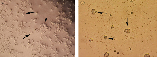 Photograph of cloned Acanthamoeba T4 genotype in NNA. Trophozoites (a) and cysts (b); magnification: ×10; bars = 30 μm.