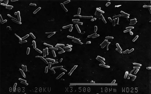 Microscopic view of Wolinella succinogenes HAP 1.