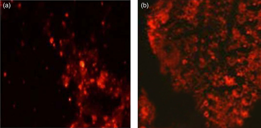 FISH showing the bacterium of granular sludge: (a) Image of the AOB cells hybridized with FITC (yellow) and Cy3 (red) labeled probes Nso190, Nsv443 and Nsm156 (red); (b) red color indicates anammox bacteria hybridized with Cy3-labeled Amx368 probe. The full color version of this figure is available in the online version of this paper: http://dx.doi.org/10.2166/wrd.2016.156.