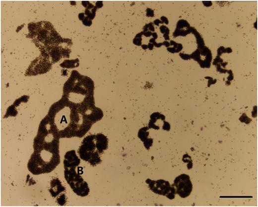 Microcystis morphospecies occurred in the mainstream of Haihe River. (A) M. aeruginosa, (B) M. novacekii, scale bars indicates 50 μm.