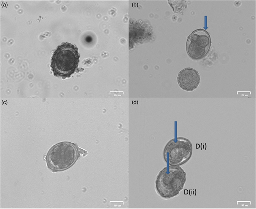 Images of potentially viable eggs at different stages of development. (a) Egg at the one cell stage; (b) decorticated egg undergoing embryonation; (c) decorticated egg at multicellular stage (>7 cells); (d) eggs with visible larvae (indicated by the arrow).